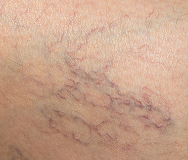 Spider vein removal.
