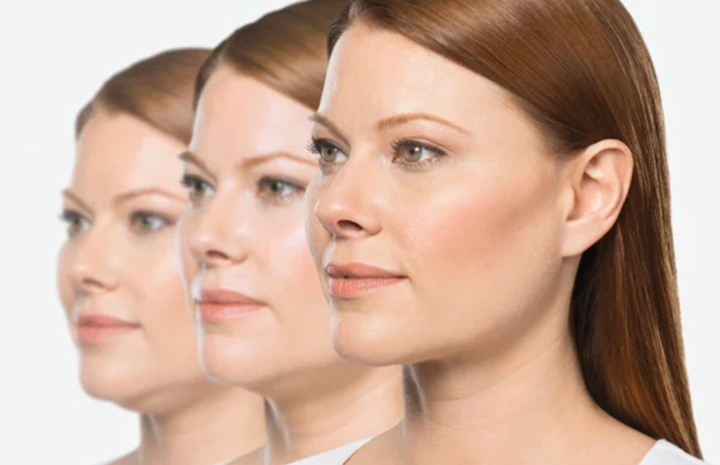 Kybella for submental fullness. Injectable.