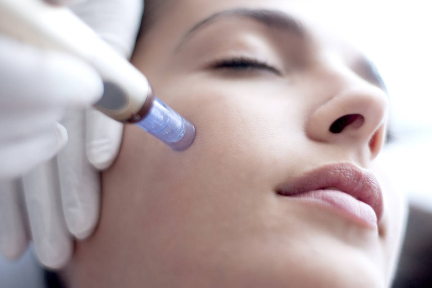 Eclipse Micropen. Microneedling. Anti-Aging.