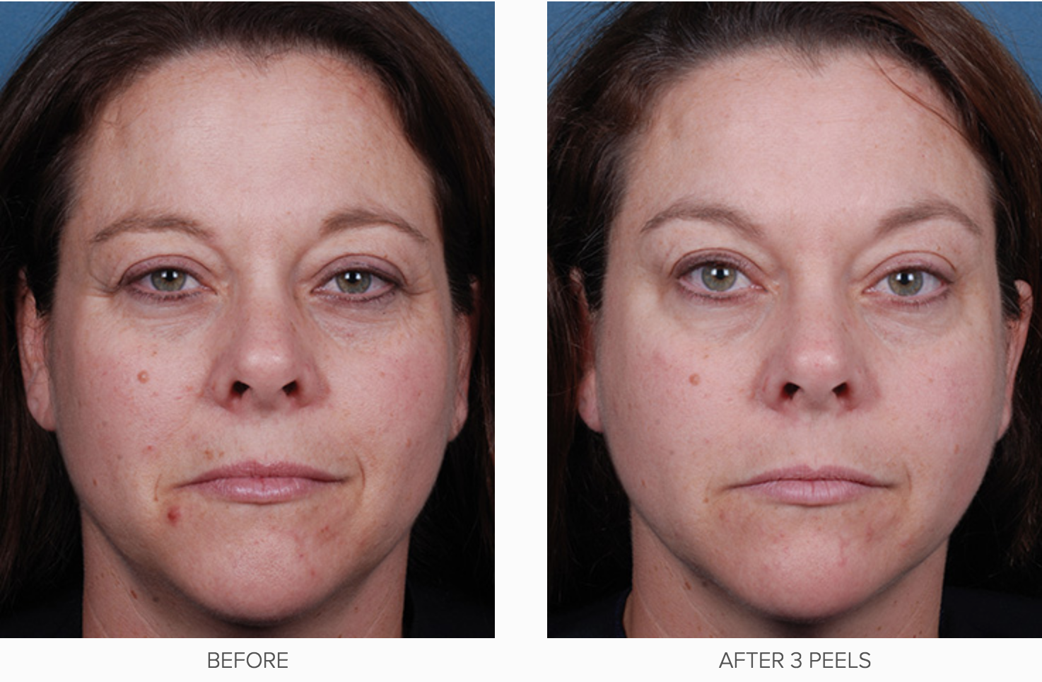 Obagi Blue Radiance Peel before and after