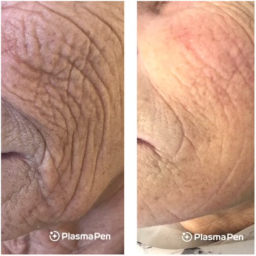 Plasma-Pen-Treatment-Before-And-After-Cheeks-Full-Size-02