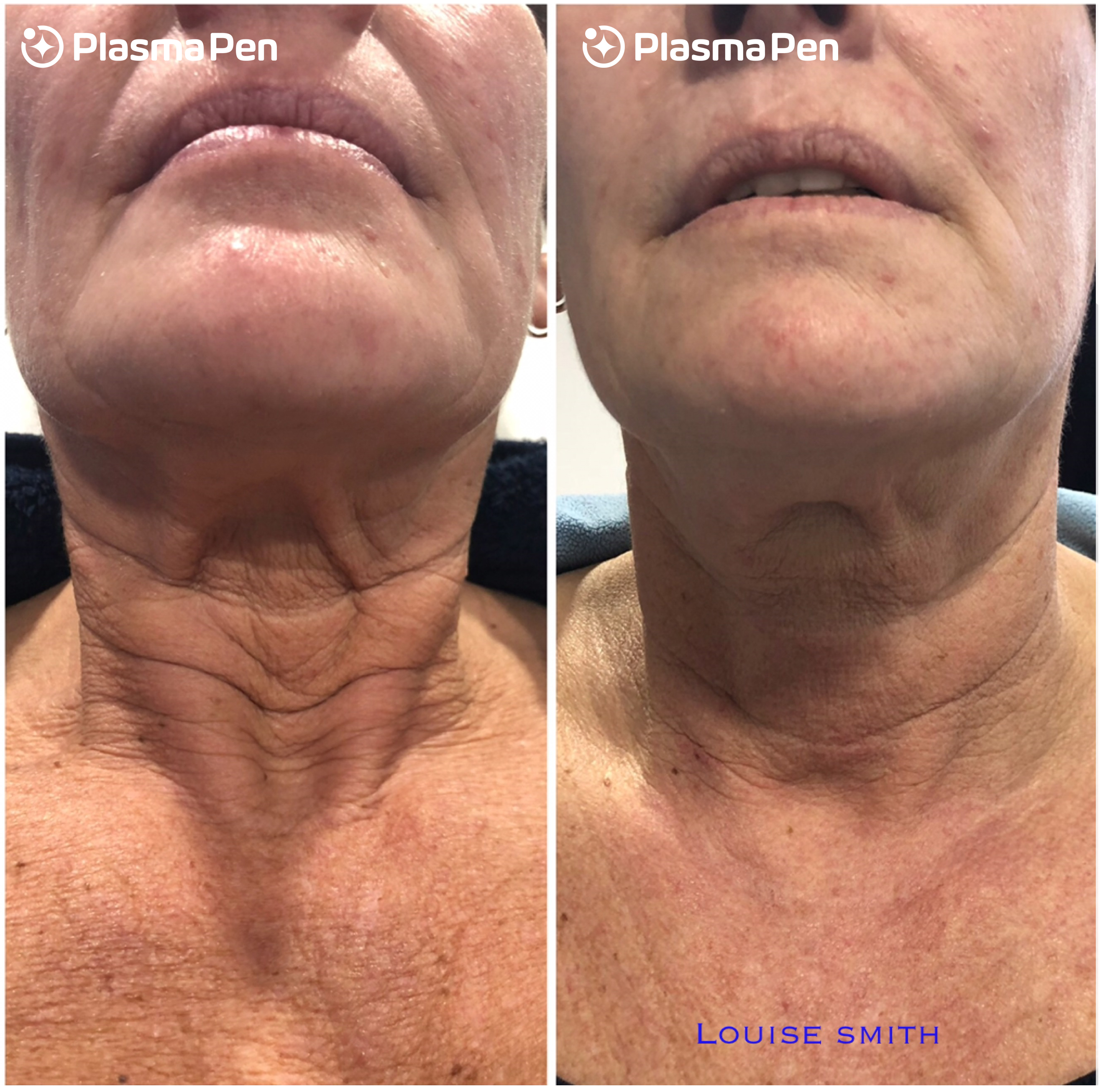 Plasma-Pen-Treatment-Before-and-After-Neck-Lift-Full-Size-04