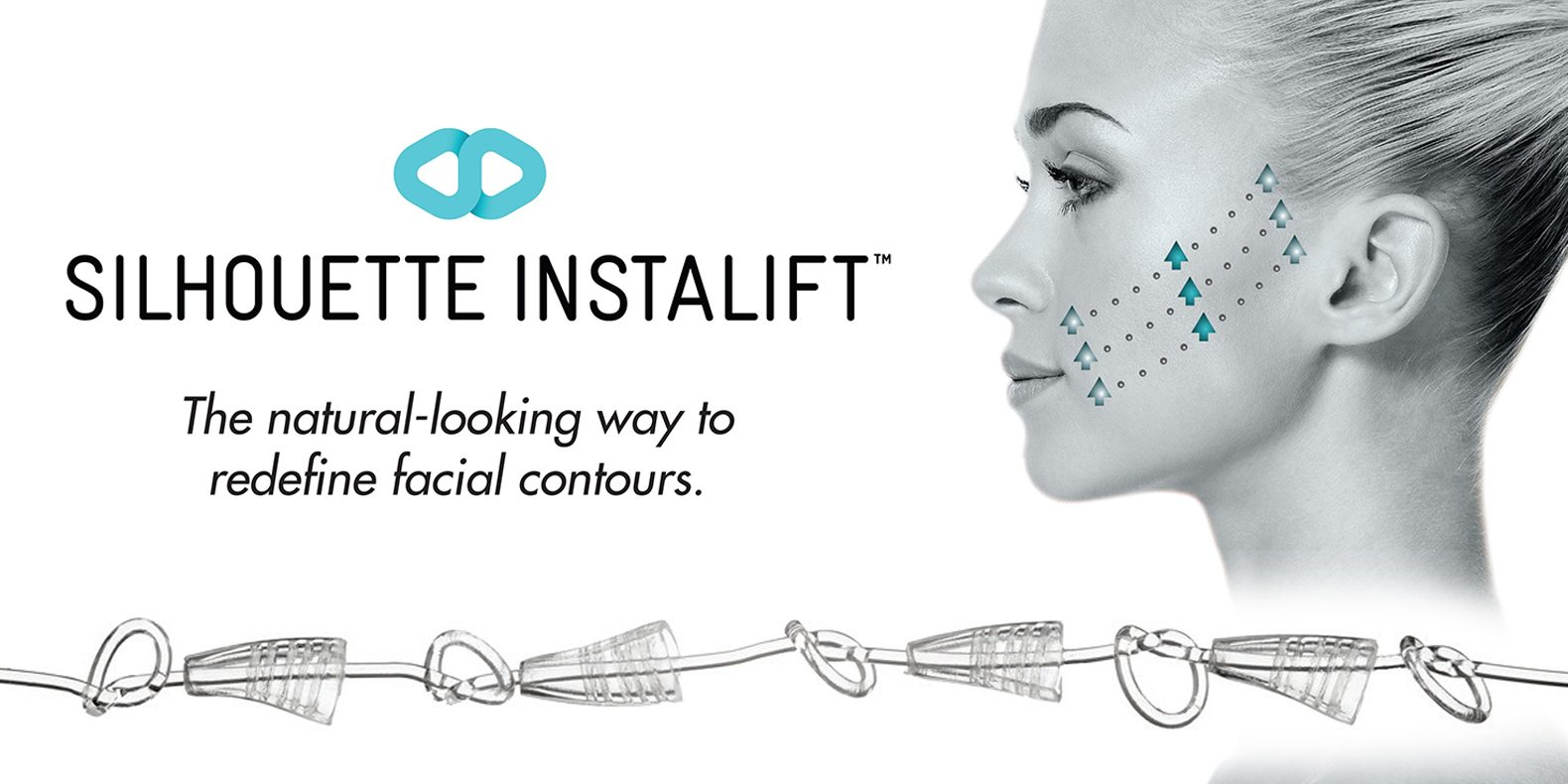 Silhouette InstaLift now at Ageless Skin Rejuvenation