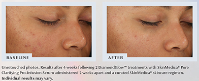 DiamondGlow Before & After Results 2 - Unretouched photos. Results after 4 weeks following 2 DiamondGlow™ treatments with SkinMedica® Pore Clarifying Pro-Infusion Serum administered 2 weeks apart and a curated SkinMedica® skincare regimen. Individual results may vary.