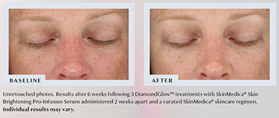 DiamondGlow Before & After Results 3 - Unretouched photos. Results after 6 weeks following 3 DiamondGlow™ treatments with SkinMedica® Skin Brightening Pro-Infusion Serum administered 2 weeks apart and a curated SkinMedica® skincare regimen. Individual results may vary.